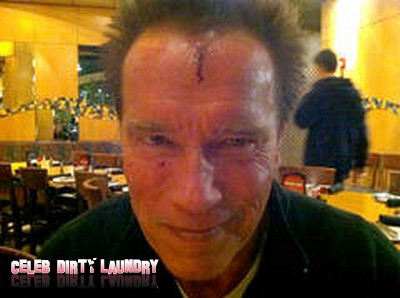 Arnold Schwarzenegger Head Gash Injury While Filming 'The Last Stand'