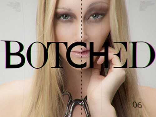 "Botched Recap 10/26/14: Season 1 Episode 9 Reunion Part 1 ""Show & Tell"""