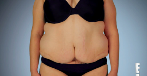 """Botched Recap 7/5/15: Season 2 Episode 12 """"Say Yes to the Breasts"""""""