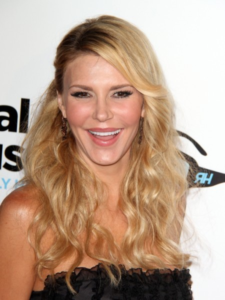 Brandi Glanville Burns Face With Laser Peel Cosmetic Surgery (Photo) 0411