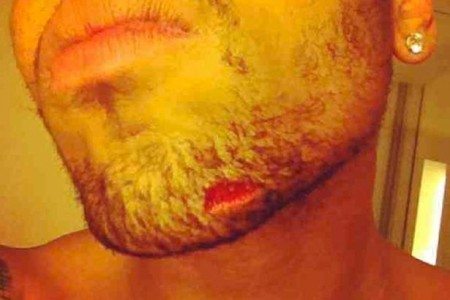 Drake Injures Chris Brown In Fight Over Rihanna 0614