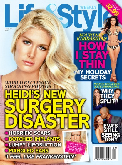 Heidi Montag Reveals Her Regrets and Plastic Surgery Scars