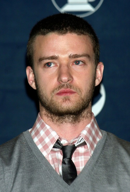 Justin Timberlake Going Bald: Got Hair Plugs To Cover