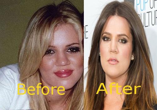 Khloe-Kardashian-Nose-Job-Before-and-After