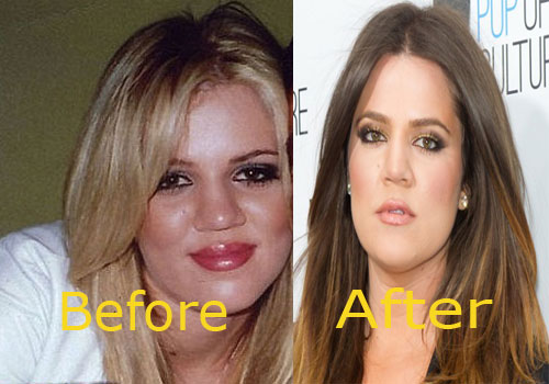 Khloe Kardashian's Nose Job in Third Grade Ordered by Kris Jenner: Of Course Kim Waxes North West's Eyebrows