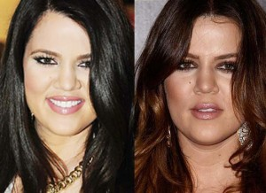 Khloe Kardashian's Nose Job No Longer A Plastic Surgery Secret (PHOTOS)