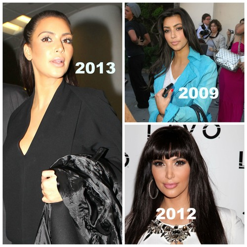 Kim-plastic-surgery