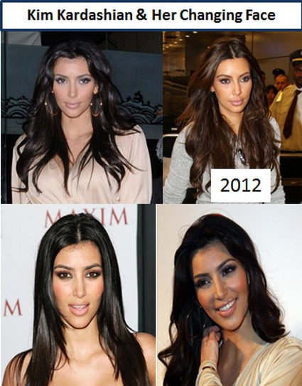 Kim Kardashian Goes Wild With Plastic Surgery Since Dumping Kris Humphries (Photos)