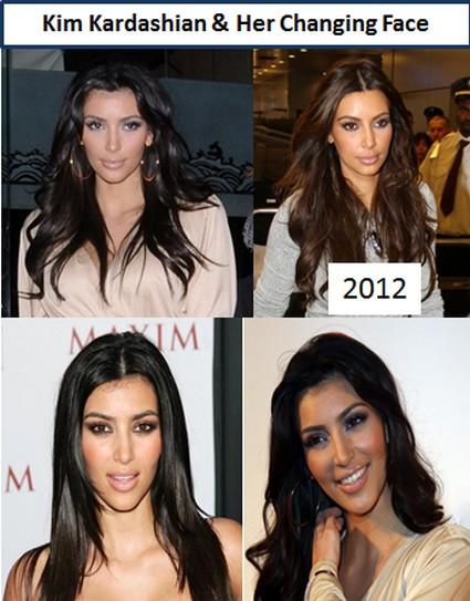 Kim Kardashian Goes Wild With Plastic Surgery Since Dumping Kris Humphries (Photos)