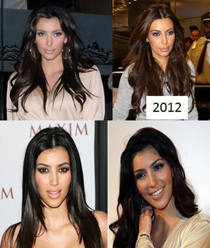 Kim Kardashian Plastic Surgery Addict - Despite Kanye West's Threats (PHOTOS)