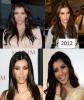 Kim_Kardashian_cosmetic_surgery