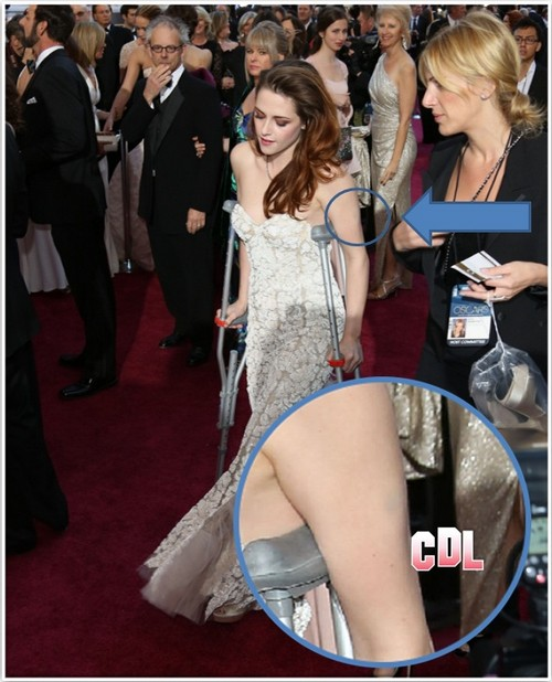 Kristen Stewart Breaks Down – Destructive Self-Harm As Career Disappears?