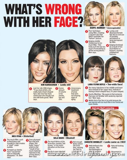 Celebs' Plastic Surgery Has Passed The Critical Point - They Now Look Freaky