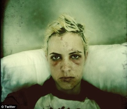 Samantha Ronson Looks Battered and bruised After Bike Accident