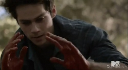 "Teen Wolf RECAP 2/17/14: Season 3 Episode 19 ""Letharia Vulpina"""