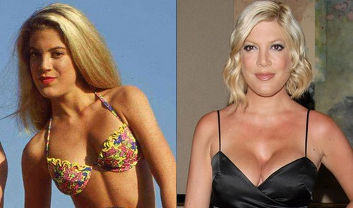 Tori Spelling So Poor She Can't Afford Hubby's Vasectomy But She Buys Lots Of Plastic Surgery! (PHOTOS - VIDEO)