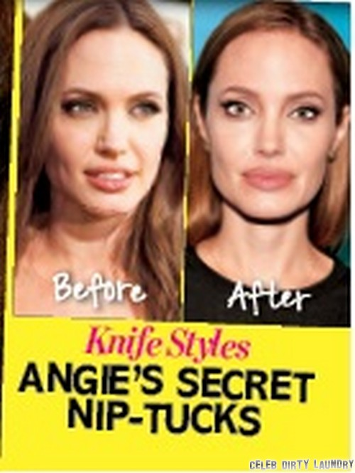 Angelina Jolie Plastic Surgery Reveal! - Nips and Tucks, Botox and Fillers For Aging Angie