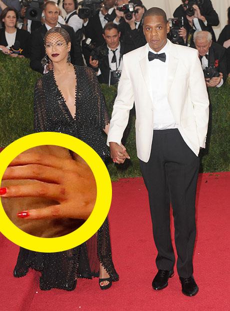 Beyonce Removes Ring Finger Tattoo: Erases Jay-Z Eternal Love (PHOTO)