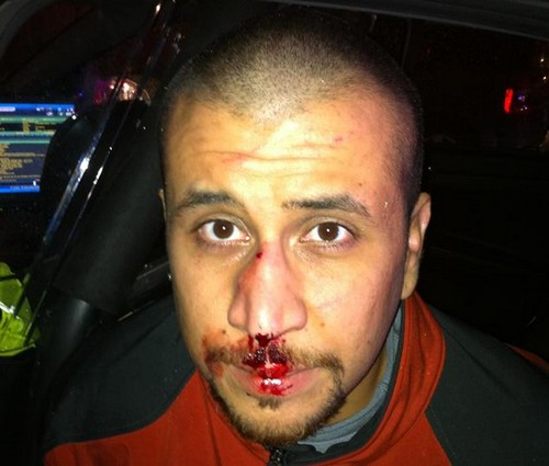 George Zimmerman Demands to Fight Kanye West For His First Celebrity Boxing Match
