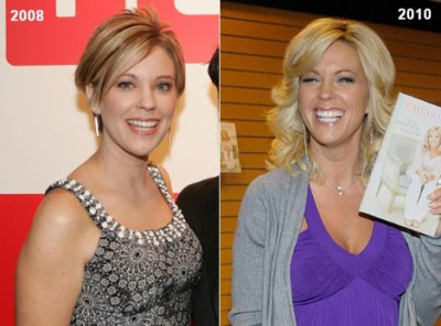 Did Kate Gosselin Get A Boob Job?