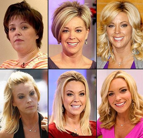 Kate Gosselin Plastic Surgery: Has Had A Facelift & Nose Job
