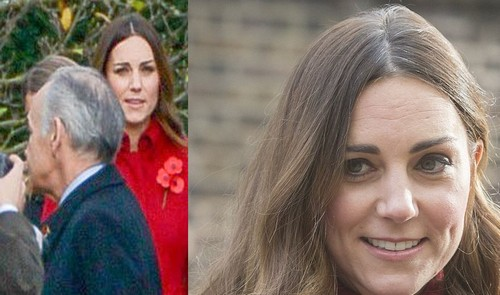Kate Middleton's Grey Hair Display: More Evidence of Postpartum Depression? (PHOTO)