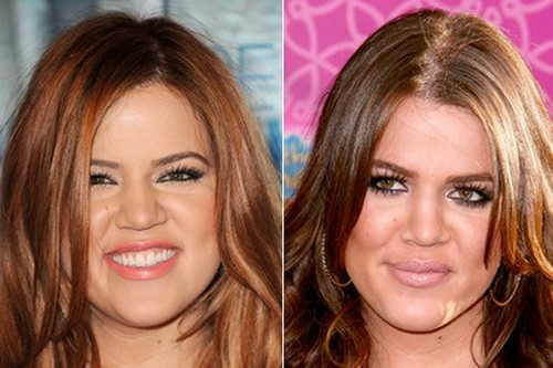 Khloe Kardashian's Nose Job - Copies Kim Kardashian With Plastic Surgery Sculpting
