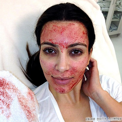 Kim Kardashian Gets Bloody Facial On 'Kourtney & Kim Take Miami' (Photo)