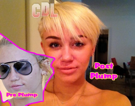 Miley Cyrus Plumps her Lips up Big Time -- Next Stop Plastic Surgery?