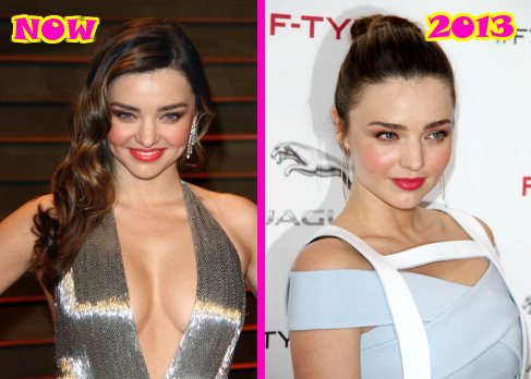 Miranda Kerr's New Boob Job: Top Docs Claim She's Definitely Had Plastic Surgery! (PHOTOS)