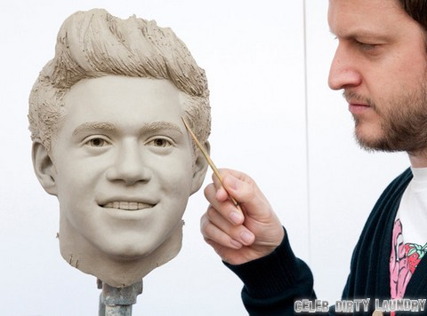 One Direction's Niall Horan Takes Off Braces: Reveals Smile Makeover