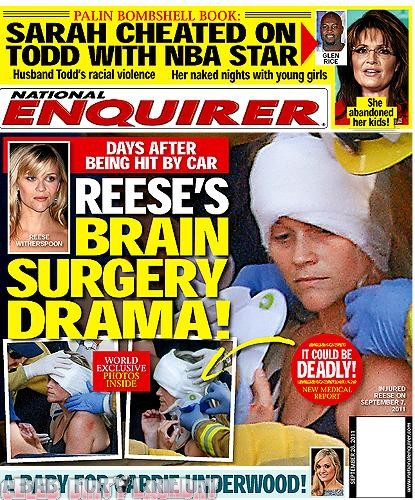 National Enquirer: Reese Witherspoon's Brain Surgery Drama - Photo