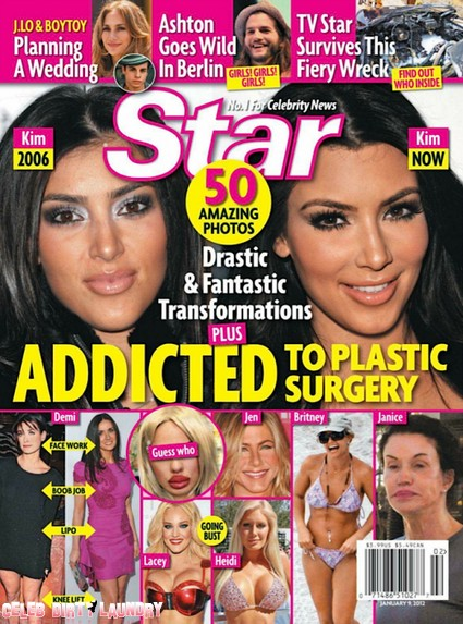 Celebs Addicted To Plastic Surgery - Drastic & Fantastic Transformations (Photo)
