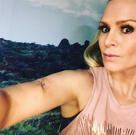 Tamra Judge Reveals Skin Cancer Fears And Mystery Mole: Uses Health Scare For 'Real Housewives of Orange County' PR Gains?