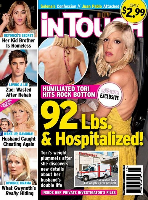 Tori Spelling Hospital Emergency: Drastic Weight Loss Due To Anorexia - 92 Pounds! (PHOTOS)