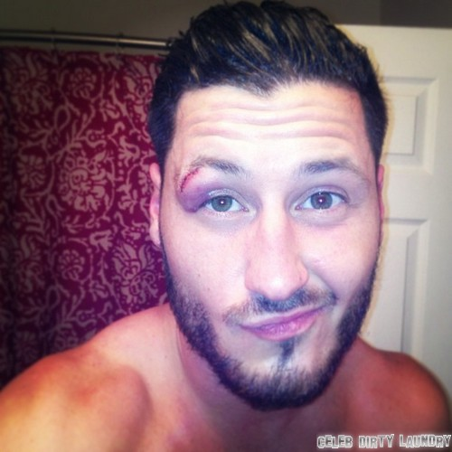 Val Chmerkovskiy Injured On The Set Of Dancing With The Stars (Photos)