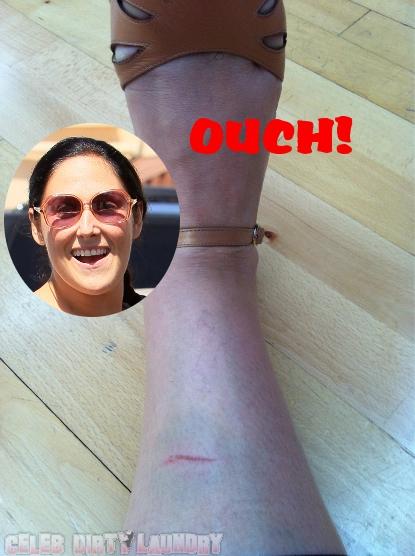 Ricki Lake Gets A Major Bruise In Dance Practice