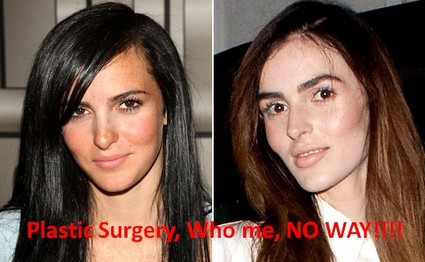 Ali Lohan Denies Her Obvious Plastic Surgery And Lindsay Concurs