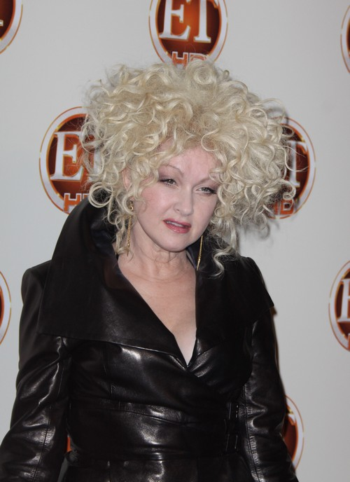 Cyndi Lauper Gets Nuked By Cosmetic Surgery Procedure