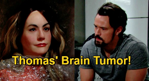 The Bold and the Beautiful Spoilers: What's Wrong With Thomas - Hope Mannequin Obsession Too Creepy, Does He Have A Brain Tumor?