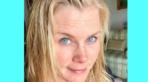 Days of Our Lives Spoilers: Alison Sweeney's Health Shocker – Shares Skin Cancer Test Results, Offers Advice to Fans