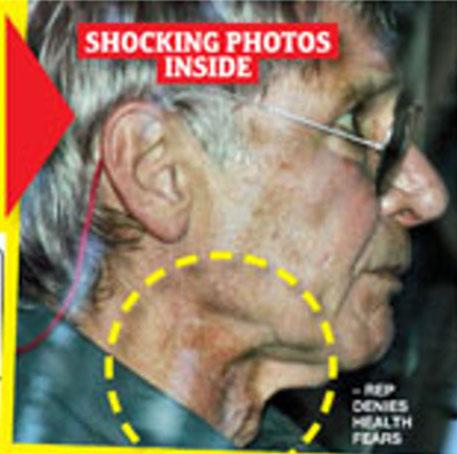 Harrison Ford Can't Hide Skin Cancer Medical Crisis