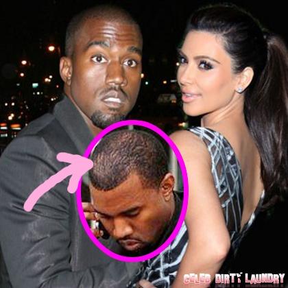 Kim Kardashian is Making Kanye West Go Bald (Photo)