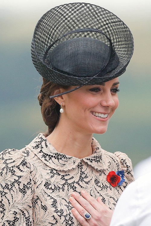 Kate Middleton's 'Maniac Grin': Proof That The Duchess Is Getting Fillers And Botox?