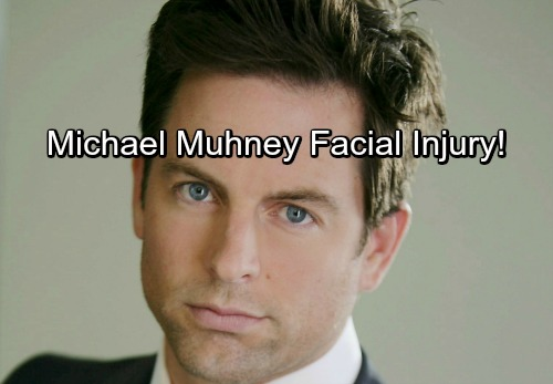 The Young and the Restless Spoilers: Michael Muhney Terrible Facial Injury – Find Out Why Former Y&R Star's Suffering